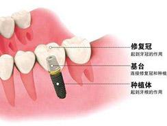 牙齿修复哪家靠谱创新服务