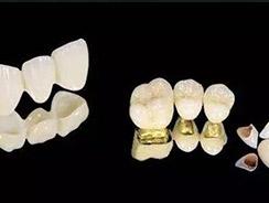牙齿修复报价单品质精良