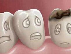 镶牙哪里有名